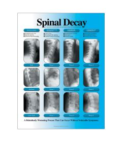 Spinal Decay Poster, Left Facing, Paper
