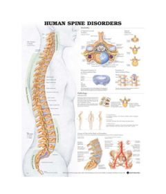 Human Spine Disorders